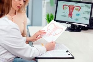 Радиоволновое лечение эрозии шейки матки: плюсы и минусы метода прижигания, этапы проведения
