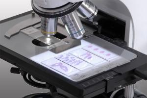 Биопсия шейки матки при эрозии: расшифровка результатов