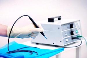 Лечение эрозии шейки матки химической коагуляцией
