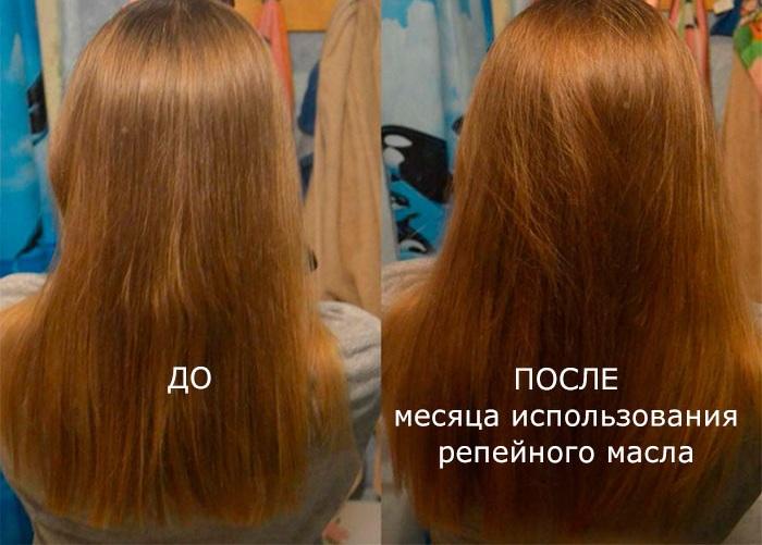 Как использовать репейное масло для волос - способы применения