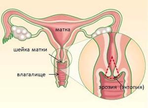 Лечение эрозии шейки матки народными средствами: причины и симптомы заболевания