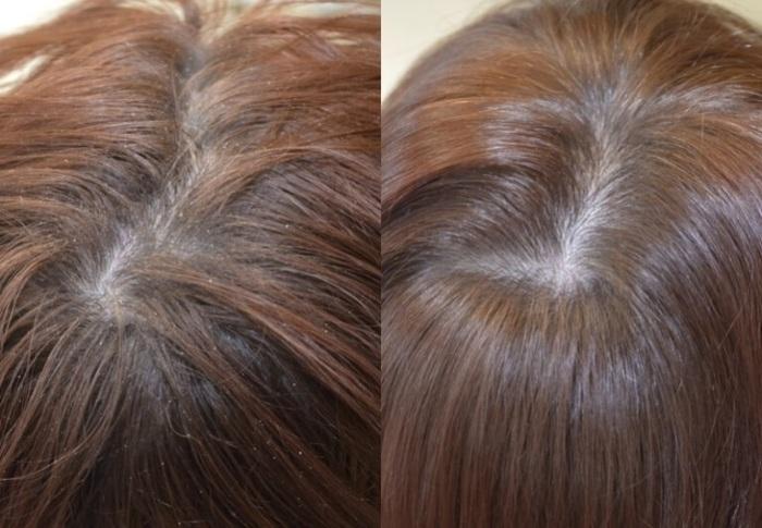Как использовать репейное масло для волос от перхоти