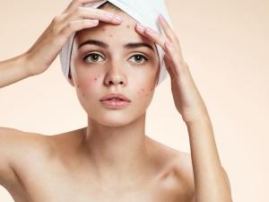 Скраб для лица от прыщей: особенности ухода за данным типом кожи