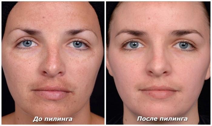 Фруктовый пилинг для лица: фото до и после процедуры