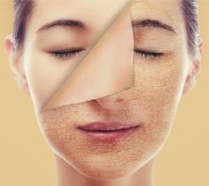 Лазерный пилинг кожи лица: что это такое?