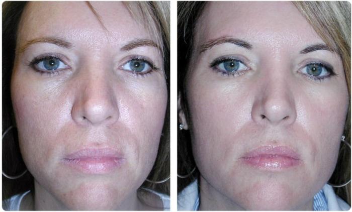 Газожидкостный пилинг лица: фото до и после процедуры