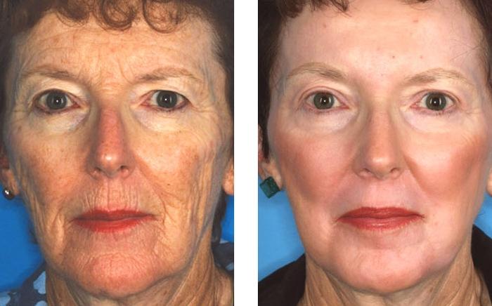 Химический пилинг: фото лица до и после процедуры