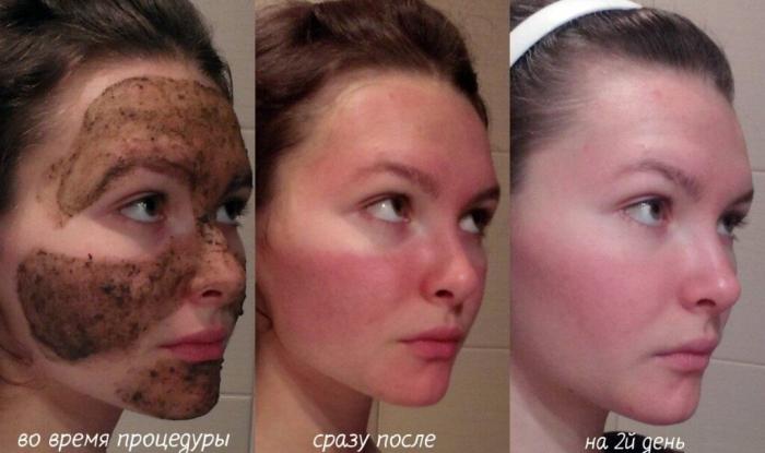 Пилинг бодягой: фото лица после процедуры