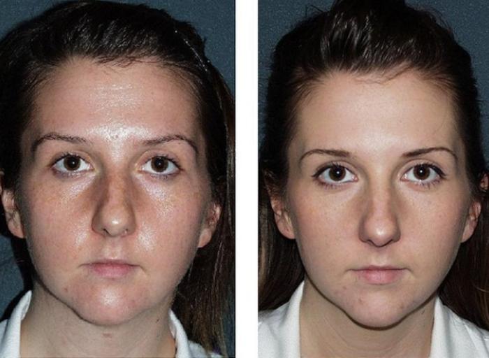 Гликолевый пилинг: фото до и после процедуры
