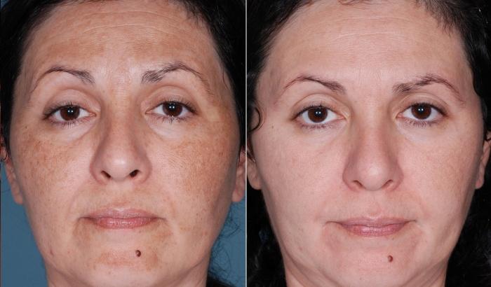 Химический пилинг в салоне: фото до и после процедуры
