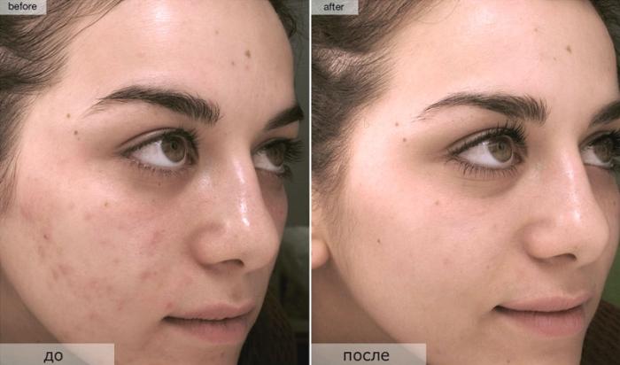Срединный пилинг лица: фото до и после процедуры