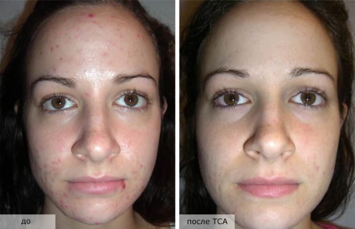 ТСА пилинг: фото до и после процедуры