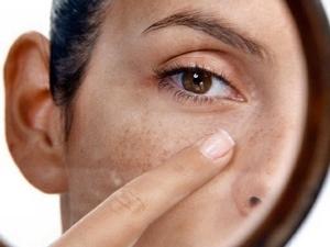 Лицо после пилинга: рекомендации и меры предосторожности