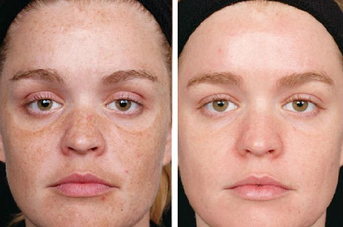 Преимущества энзимного пилинга кожи