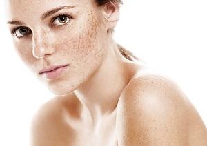 Уход после пилинга: что можно и нельзя делать, как ухаживать, какими кремами и мазями мазать кожу лица?