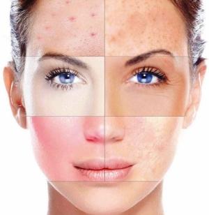 Виды пилингов: выбор в зависимости от типа кожи