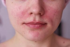 Пилинг кожи лица: абсолютные противопоказания
